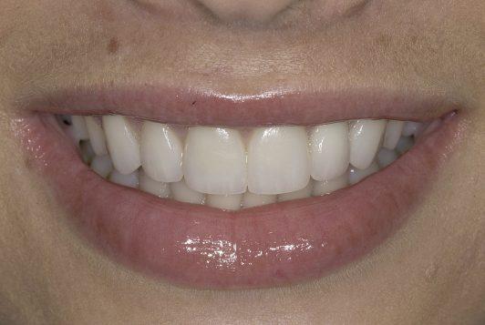final smile 2