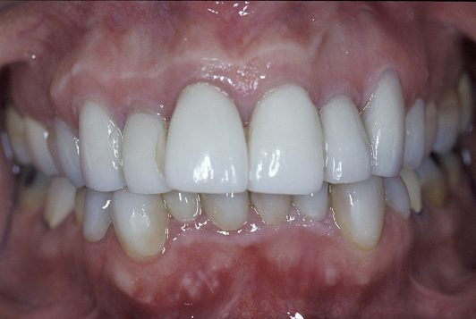 initial intraoral frontal 2