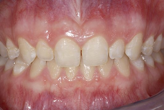 initial intraoral frontal before