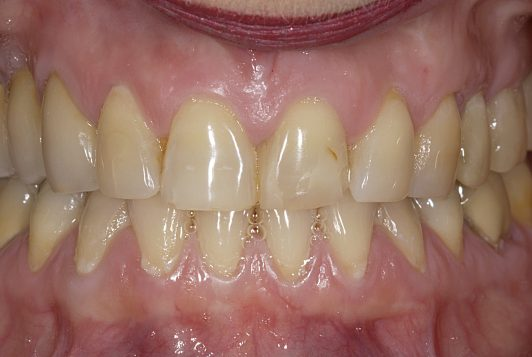 initial intraoral frontal