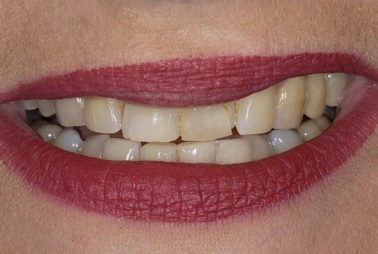 initial smile 3