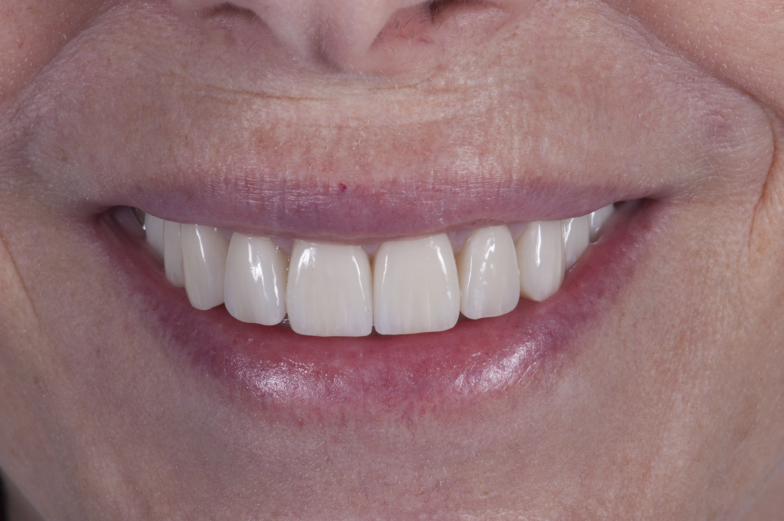 Crowns Vs. Porcelain Veneers Vs. Dental Implants