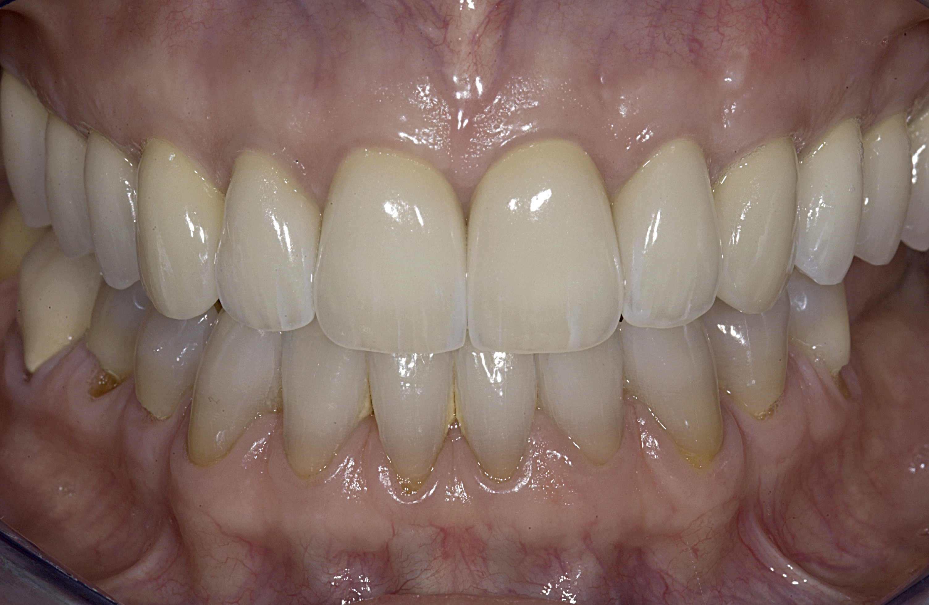 final intraoral frontal