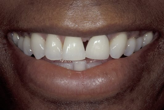 initial smile 2