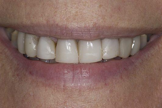 initial smile3