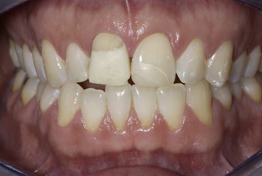 intraoral frontal