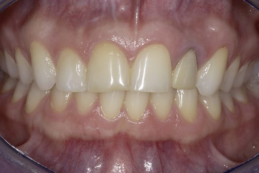 intraoral frontal 2