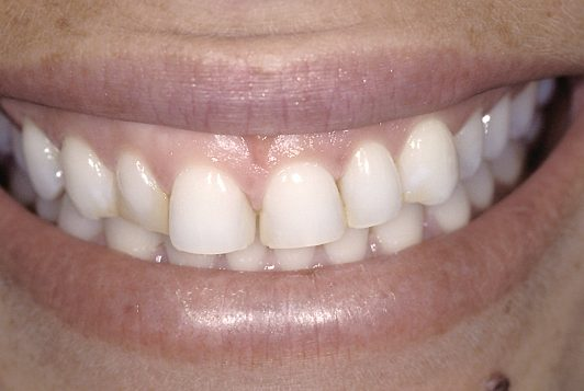 scanned smile original jennifer